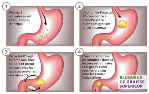 Proactol XS est un bloqueur de graisses